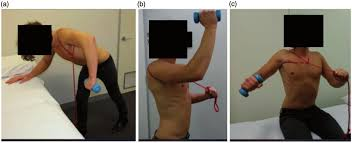 Multidirectional Instability (MDI). A non-operative program focussing on scapular control